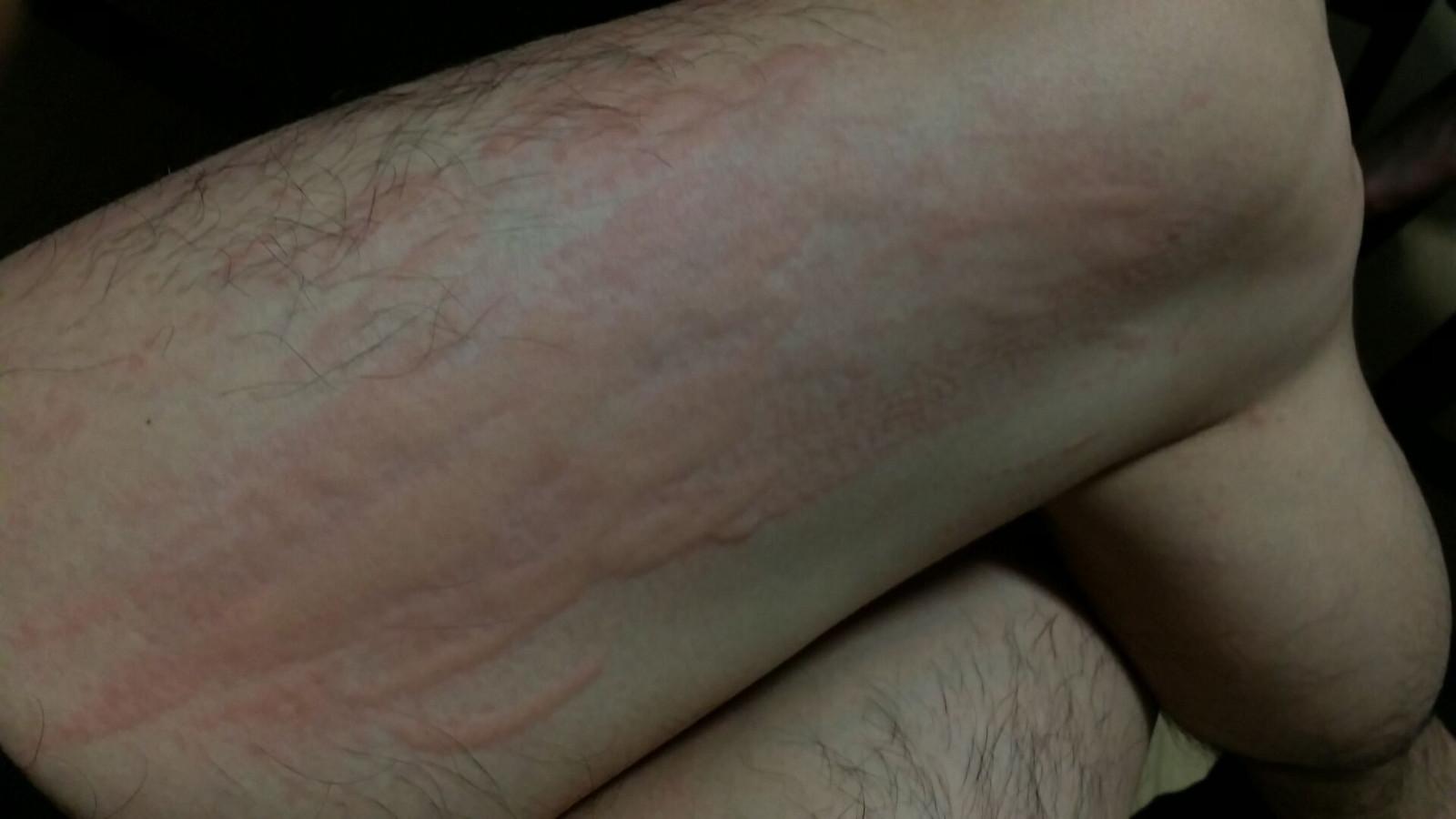 麻疹 風呂 上り 蕁